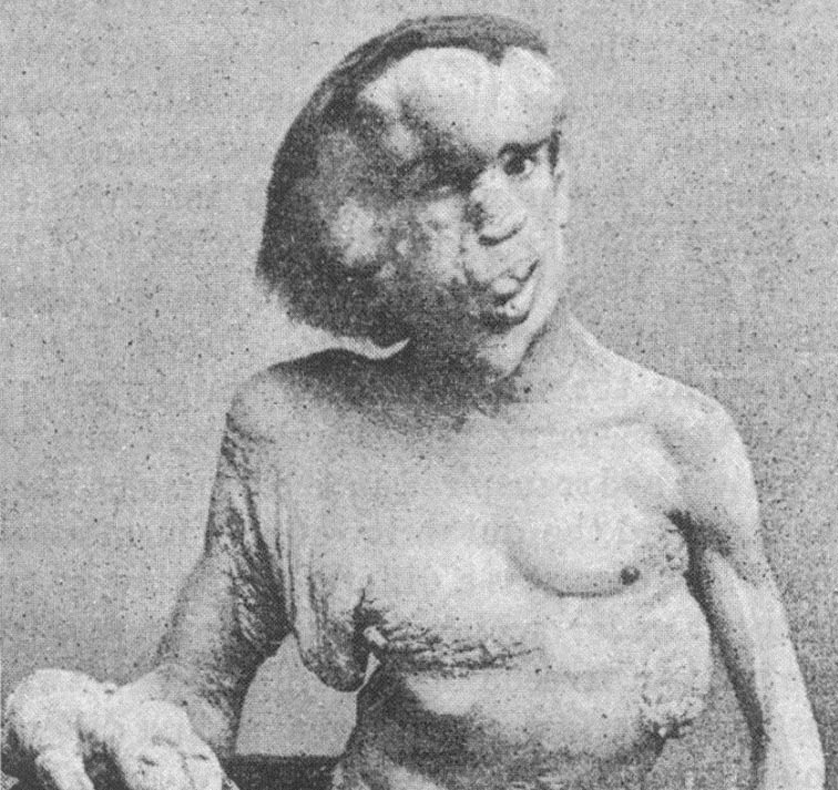 Nejděsivější deformace živých lidí. Podívejte se!